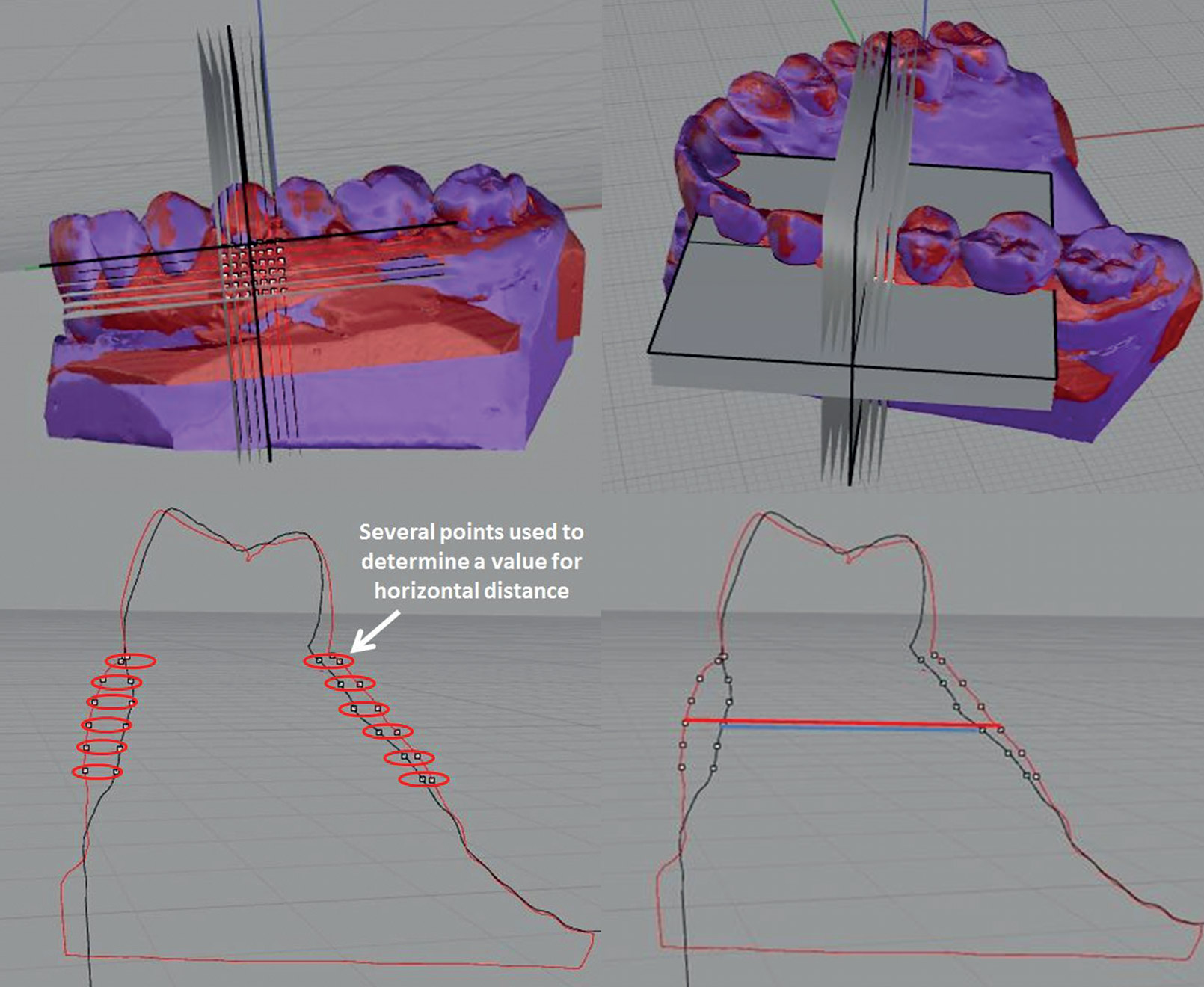 A-volumetric-3-D-digital-analysis-of-dimensional-changes-to-the-alveolar-process-at-implants-placed-immediately-into-extraction-sockets