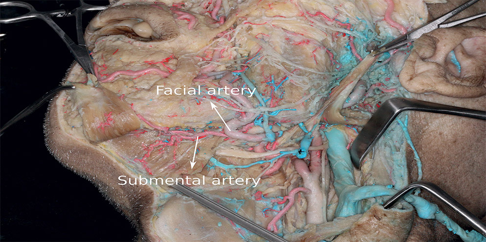 review of the arterial vascular anatomy for implant