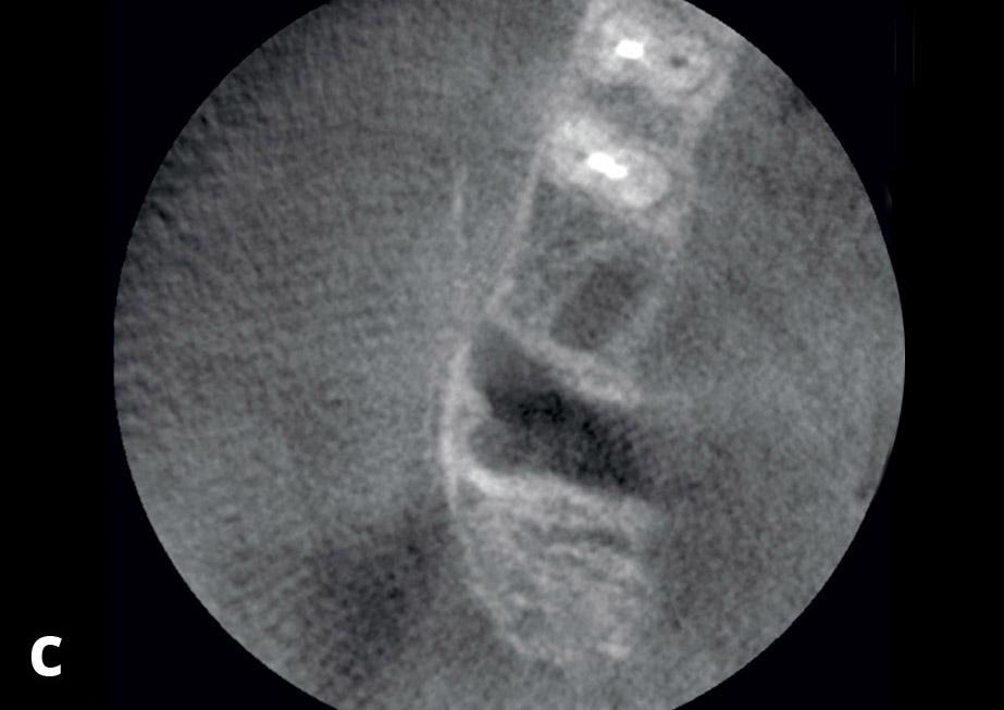 Fig. 4c