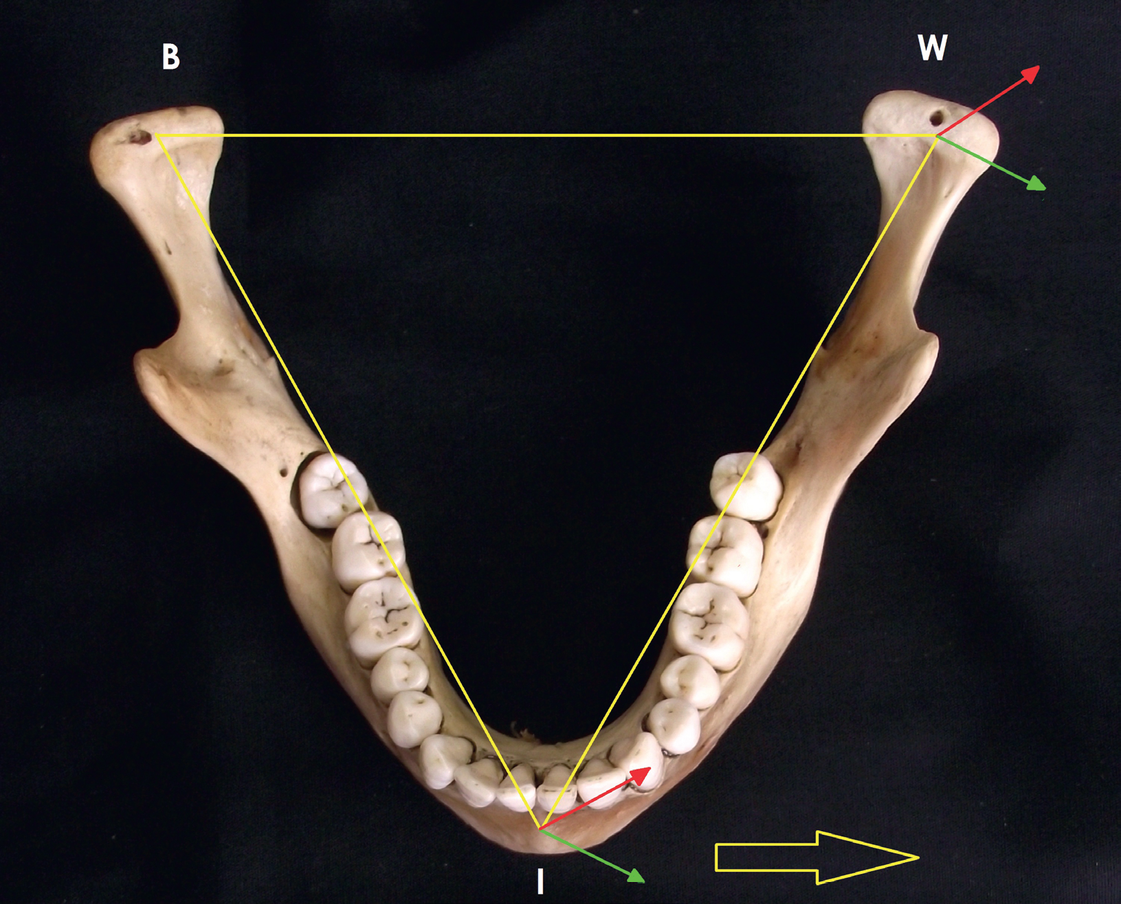 The Language of Anatomy: anatomical position and ...  |Lateral Plane