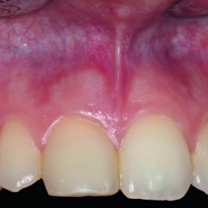 Fig. 1 Clinical view before the trapezoidal submarginal flap for periapical surgery of tooth #11.