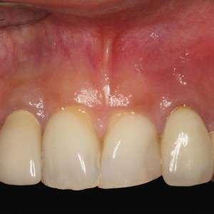 Fig. 13 Clinical view before periapical surgery of teeth #12 and 22.