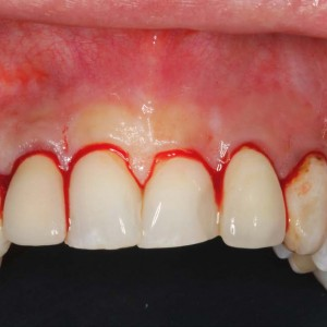 Fig. 14 Sulcular incision along the gingival margin of the teeth and two vertical releasing incisions distal to the canines.