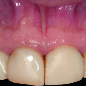 Fig. 16 Clinical view before periapical surgery of tooth #11.