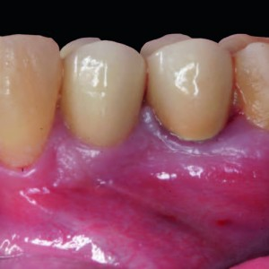 Fig. 18 Clinical view before surgery of tooth #34.