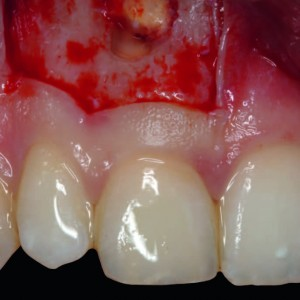 Fig. 3 Intraoperative view after ostectomy and resection of the apex of tooth #11.