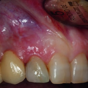 Fig. 4 Initial view before preparation of the triangular submarginal flap for periapical surgery of tooth #12.