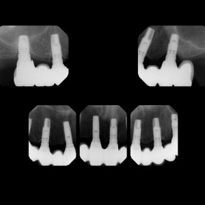 Fig. 15a Radiographic follow-up of the maxillary molars up to 13 years.