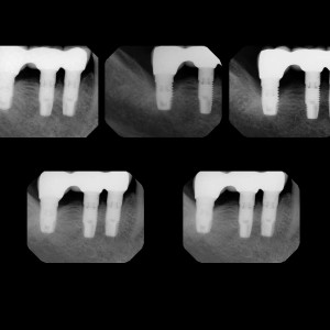Fig. 15b Radiographic follow-up of the right mandibular second molar from the start of the periimplantitis up to the 13th year of follow-up.