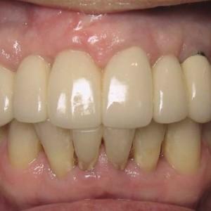 Fig. 8 Periimplant bone loss at the left mandibular second molar.