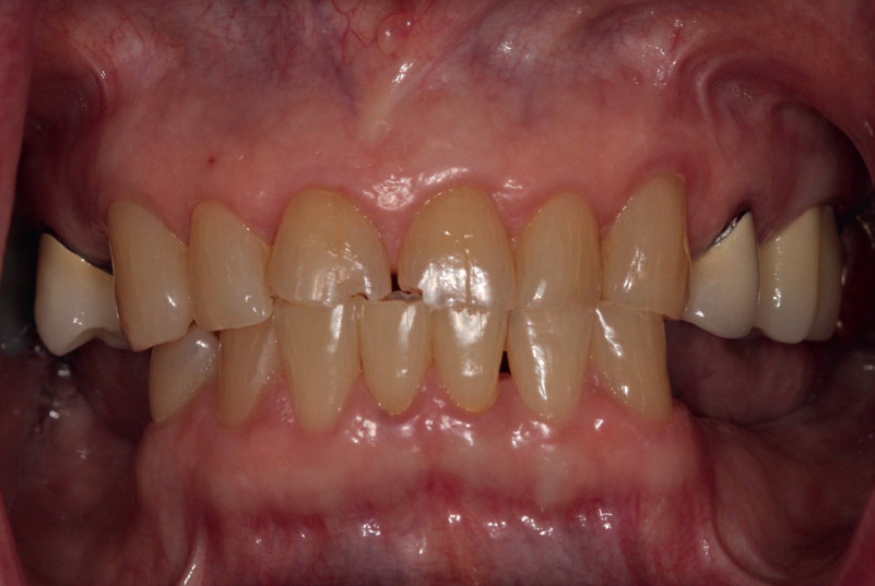 Fig. 1Preoperative smile view. Note attrition on incisal edges.