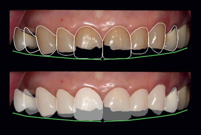 Fig. 4Digital smile design, establishing maxillary incisal edge position.