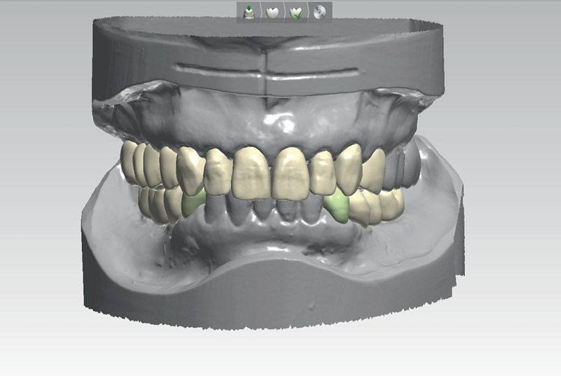 Fig. 5Completed virtual diagnostic wax-up at increased VDO after digital smile design.