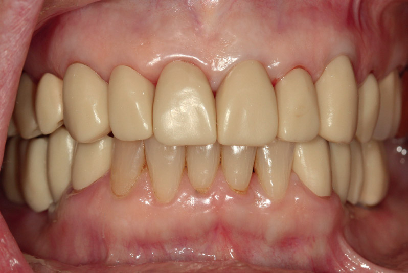Fig. 6Milled wax prototype try-in, smile view.