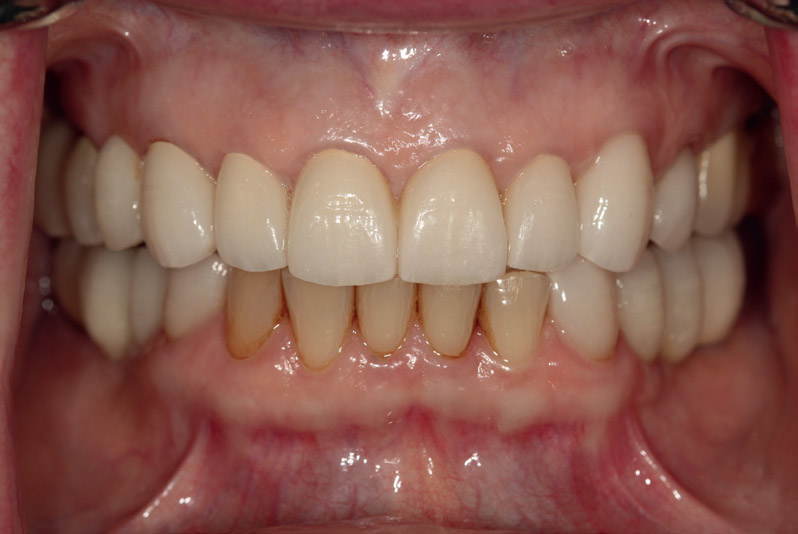 Fig. 9Final restorations cemented.