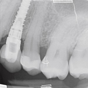 Fig. 11 Periapical radiograph at 6 years, showing optimal maintenance of the marginal bone level.