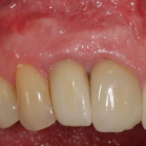 Fig. 4D Intraoral photograph of perfect soft-tissue healing.