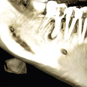 Fig. 6A Tomographic scan of an apical lesion of a mandibular second premolar.