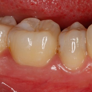 Fig. 6B Intraoral photograph of the affected tooth. Note the integrity of the gingival margin and the band of keratinized gingiva.