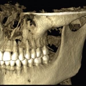 Fig. 2B Tomographic scan showing the bone defect in the left anterior maxillary region.
