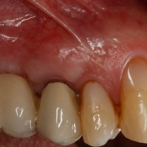 Fig. 7B Intraoral photograph of the second premolar with a metal–ceramic crown and slight retraction of the gingival margin.