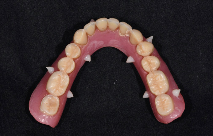 Fig. 2 Pre-existing complete removable denture with 6–8 drops of radiopaque flowable composite.