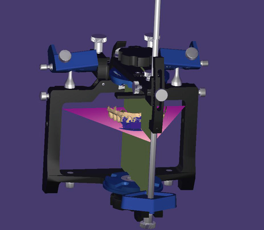 Fig. 10 Lateral view of the model orientation based on the vertical plane of the virtual articulator.