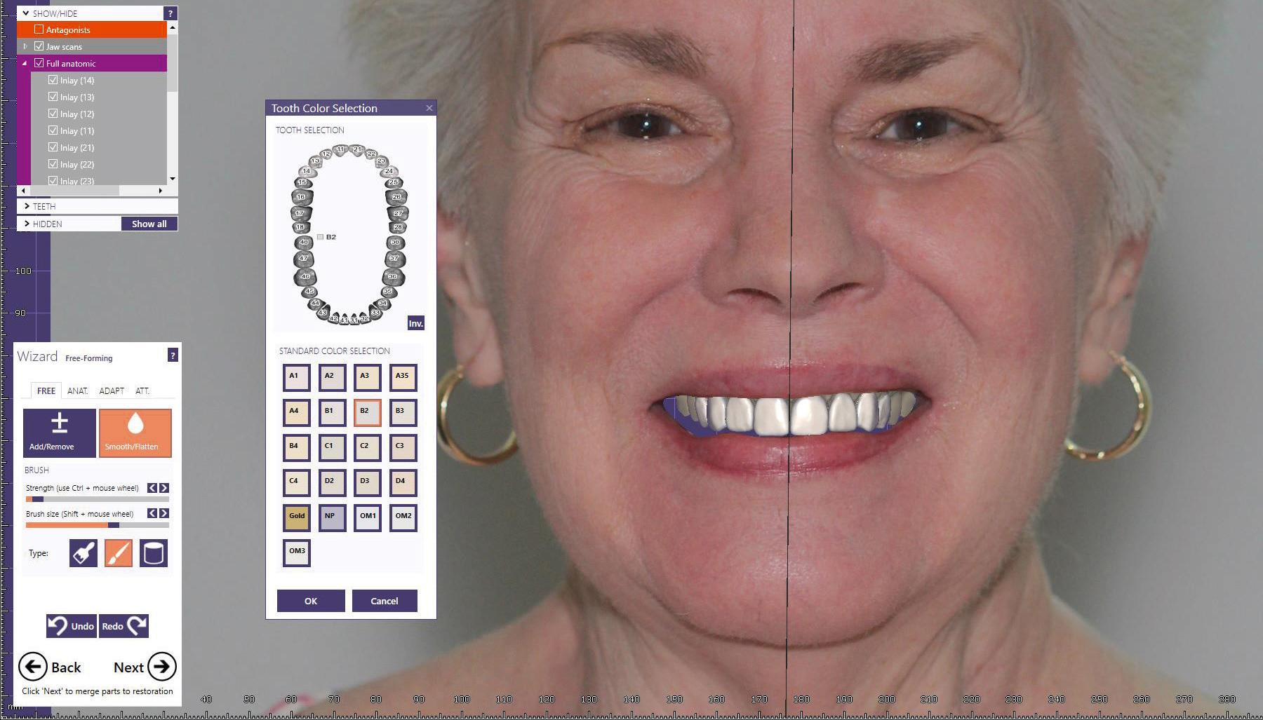 Fig. 14 3-D smile design simulation.