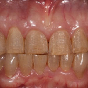Fig. 18 Intraoral photograph of conservative veneer preparations.