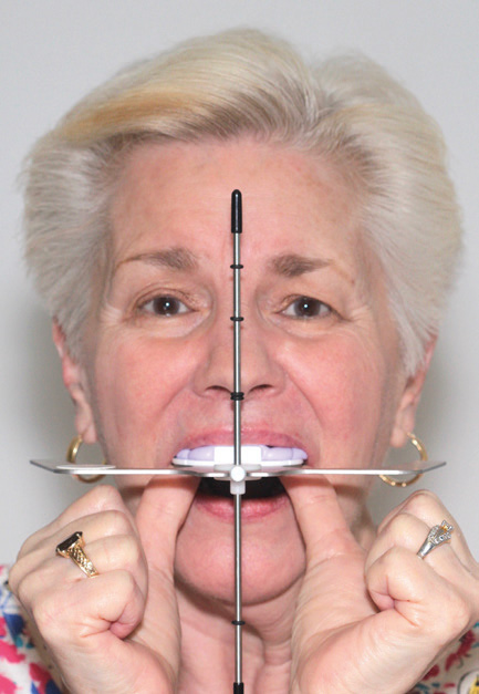 Fig. 2 Patient holding the Kois Dento-Facial Analyzer System; the middle rod corresponds to the facial midline and the Fox plane is parallel to the interpupillary line.