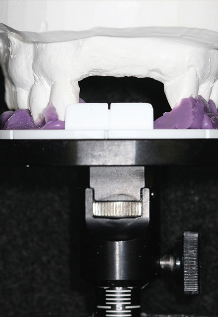 Fig. 4 Occlusal stand with index tray and dental model mounted.
