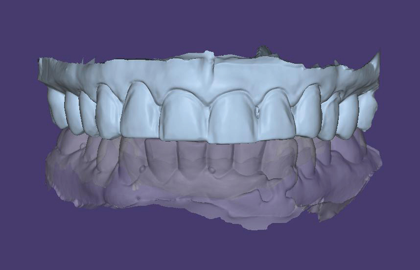 Fig. 6 Maxillary and mandibular models aligned in occlusion.