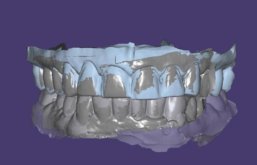 Fig. 7 Maxillary and mandibular models aligned displaying the bite record.