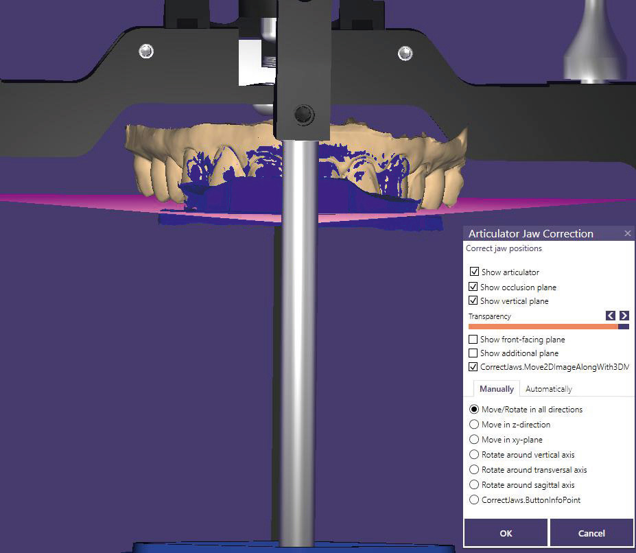 Fig. 9 Frontal view of the model orientation based on the horizontal plane of the virtual articulator.Lateral view of the model orientation based on the vertical plane of the virtual articulator.