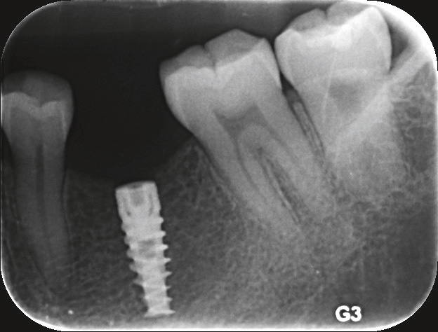 Fig. 1 SPI implant immediately after implantation surgery.