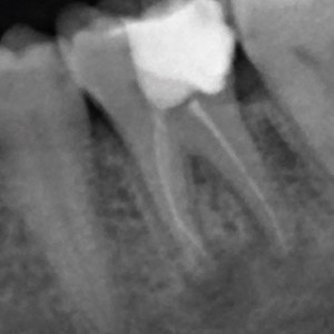 Fig. 1 Radiograph before periapical surgery.