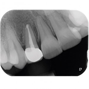 Fig. 14 Periapical radiograph 1 year after the periapical surgery.