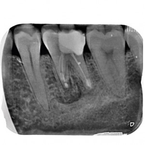 Fig. 8 Periapical radiograph after periapical surgery.
