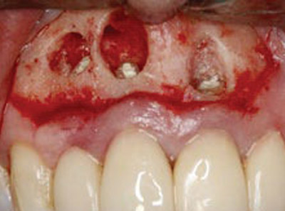 The-effect-of-autoclavable-polytetrafluoroethylene-strips-as-adjuvant-to-hemostatic-material-in-periapical-surgery-A-technical-note