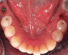 Fig. 16 Intraoral occlusal view of the natural emergence profiles of the tissue 3 months post-surgery.