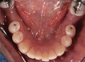 Fig. 3 Intraoral occlusal view of missing teeth #36 and 46.