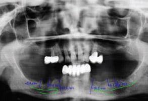 Fig. 1B Initial panoramic radiograph before surgery.