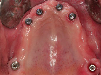 Fig. 1E  Occlusal view of the periimplant soft tissue before definitive prosthesis delivery.