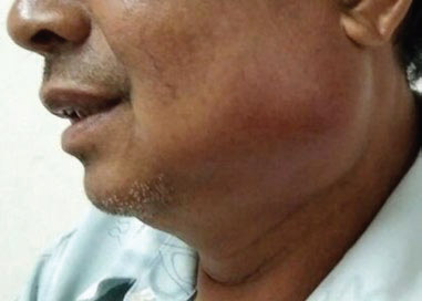 Fig. 1 Swelling of the left of the face involving the left masseter region.
